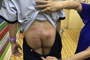 Nghi vấn bé trai 11 tuổi bị bạo hành trong thời gian dài khi ở cùng bố và mẹ kế tại Sài Gòn