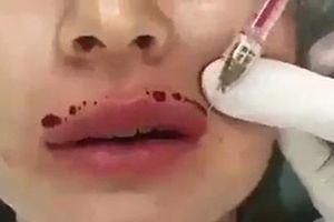 Cô gái trẻ bị hoại tử nặng vùng mặt do mua chất làm đầy mua trên mạng