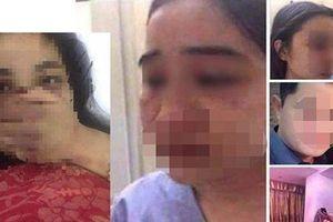 Bộ Y tế yêu cầu làm rõ vụ nữ điều dưỡng bị bác sĩ đánh đập ở Thừa Thiên-Huế