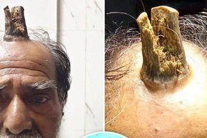 Người đàn ông buộc phải cắt 'sừng quỷ' trên đầu sau 5 năm