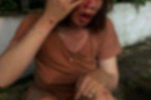 Người phụ nữ mang thai bị hàng xóm đánh trọng thương