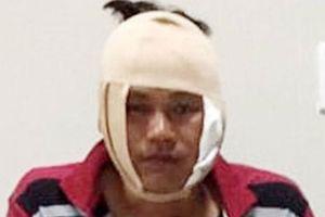 Khởi tố nam thanh niên đánh bị thương đại úy công an ở quán nhậu