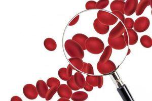 Cần chú ý những điều dưới đây nếu bạn hoặc người thân mang nhóm máu AB hiếm
