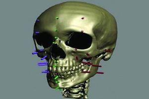 'Phù thủy' pháp y: Dựng lại khuôn mặt từ xương sọ