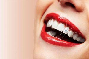 Thực phẩm cho răng trắng bóng, chắc khỏe