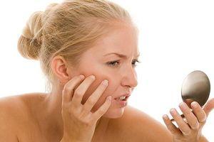 Da sần sùi nổi mụn, cần tránh những thực phẩm này