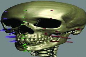 Hé lộ cách 'Phù thủy' pháp y dựng lại mặt từ xương sọ