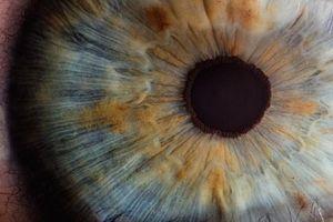 Chẩn đoán bệnh tim qua mắt bệnh nhân