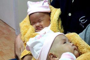 2 bé song sinh dính liền phần gan mỉm cười trong ngày xuất viện