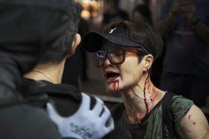 Phần tử bạo loạn tấn công cảnh sát Hong Kong, một người bị thương
