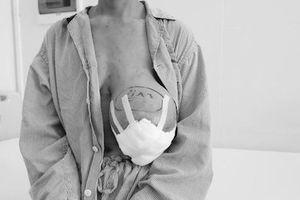 Người phụ nữ mang khối u vú nặng 4kg sau 14 năm đắp thuốc lá