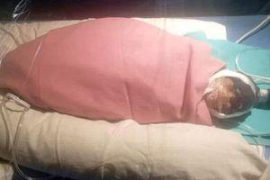 Cụ bà 75 tuổi ở Ấn Độ sinh con nặng 600g