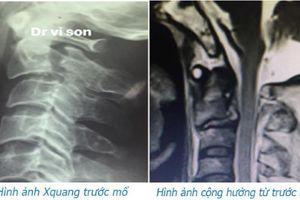 Phẫu thuật thành công bệnh nhân bị chấn thương cột sống cổ hiếm gặp