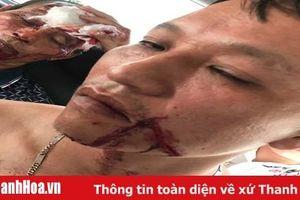 TP Sầm Sơn: Giải quyết mâu thuẫn, truy sát bằng súng khiến 3 người bị thương