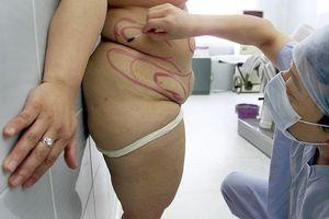 Bà mẹ 3 con tử vong vì chỉ còn 31 kg sau khi cắt dạ dày giảm cân