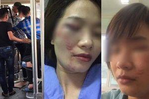 Nữ phụ xe bus Mỹ Đình - Chùa Hương bị 4 thanh niên hành hung trầy mặt