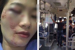 Nữ nhân viên xe buýt bị 4 thanh niên hành hung ngày 20/10