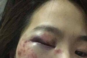 4 thanh niên đánh nữ nhân viên phụ xe buýt nhập viện