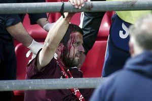 Cổ động viên Bayern Munich bị tấn công ở Hy Lạp