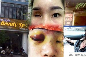UBND huyện Hiệp Hòa nói gì vụ cô gái bị mù vĩnh viễn khi nâng mũi?