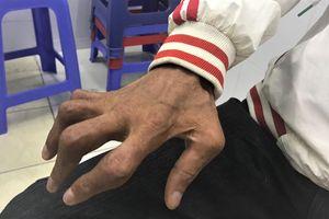 Dùng thuốc chữa vảy nến chứa corticoid, người đàn ông bị tàn phế