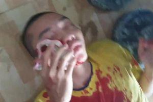 Công an nói gì về vụ xô xát ở 'Tịnh thất Bồng Lai'?