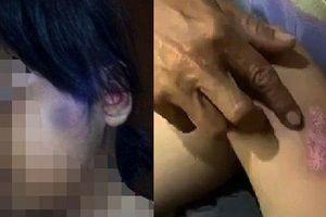 Bé gái 6 tuổi bị cha dượng châm tàn thuốc, bạo hành cơ thể