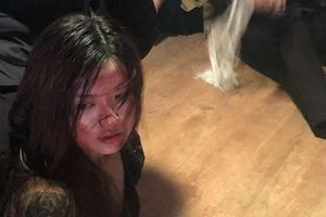 Lương Thanh đăng ảnh hậu trường Trà tiểu tam bị đánh bầm dập