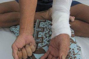 Đắp thuốc nam điều trị gãy xương, người đàn ông nhập viện cấp cứu