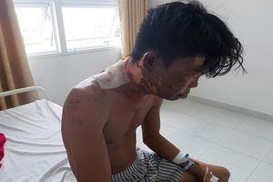Thanh niên bị chị ruột đổ nước sôi vào đầu gây bỏng nặng
