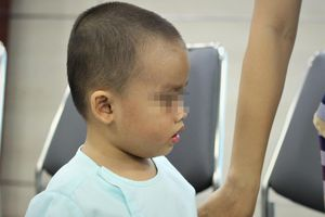 Bé trai 2 tuổi suýt mù mắt vì bị viêm xoang