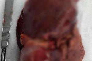Nội soi cắt khối u lớn trong gan nữ bệnh nhân 67 tuổi