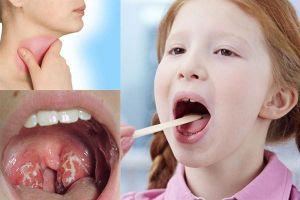 Đừng đùa với viêm họng, cực kỳ nhiều biến chứng