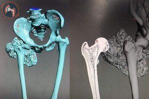 Kỳ tích y học Việt Nam: Thay xương đùi bằng xương nhân tạo in 3D