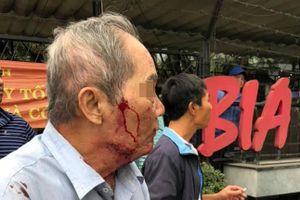 Ngày thứ 2 làm xe ôm, cụ ông 80 tuổi bị đánh gãy xương