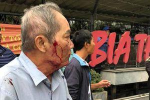 Tranh giành 'địa bàn', xe ôm đánh ông cụ 80 tuổi gãy xương sườn gây phẫn nộ