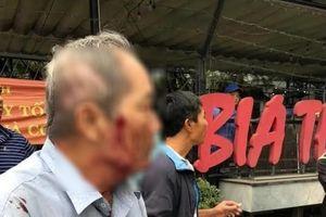Hà Nội: Điều tra vụ cụ ông 80 tuổi bị hành hung
