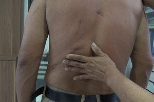 Người dân bị đâm suýt chết, công an huyện 'ngâm' hồ sơ 6 tháng chưa khởi tố