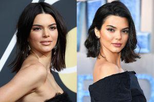Kendall Jenner đã làm gì khi mọc đầy mụn trên mặt?