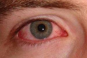 Bệnh đau mắt đỏ lây truyền qua đường nào?