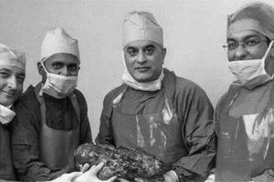 Bệnh nhân có quả thận khổng lồ 7,4 kg sắp được ghi vào sách kỷ lục Guinness