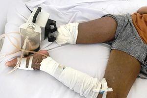 Bé gái bị rắn cắn phải cắt chân sau khi lang 'băm' cắt lễ, hút máu