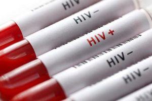 3 trẻ nghi bị phơi nhiễm HIV do bị đối tượng ngáo đá tấn công