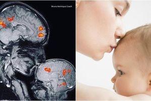 Đừng nghĩ 'Trẻ con thì biết gì!', hình ảnh chụp cộng hưởng từ MRI dưới đây khiến bạn thay đổi suy nghĩ