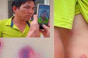 Đắk Nông: Không khởi tố hình sự vụ Chánh văn phòng đánh lái xe nhập viện