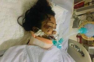 Yêu cầu cải chính thông tin người thứ 5 tử vong trong vụ TNGT nghiêm trọng ở Phú Yên