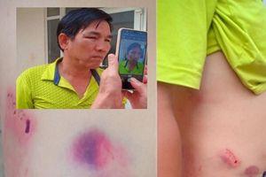 Xem xét kỷ luật chánh văn phòng huyện ủy đánh tài xế nhập viện ở Đắk Nông