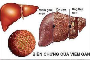 Tầm soát sớm ung thư tế bào gan