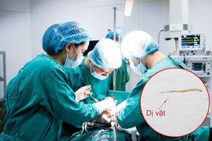 Người đàn ông có nguy cơ bị thủng ruột do nuốt phải tăm