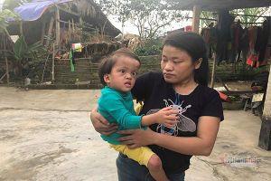 Mẹ đơn thân bệnh tim bất lực nhìn đầu con gái phình to, mắt lồi